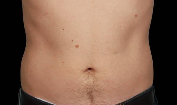 Male | Lower Abdomen | CoolAdvantage™ After
