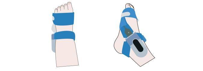 Le moniteur d'oxygène pour bébé Wellue BabyO2 porte sur le pied de bébé, confortable et sécuritaire