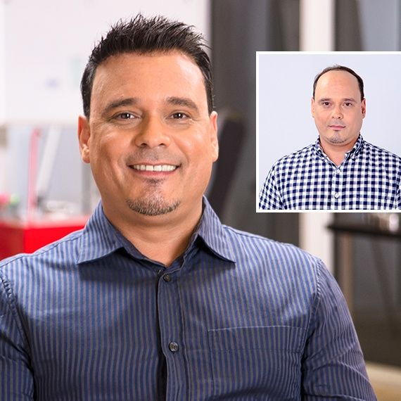 Hispanic man with hair loss before and after picture