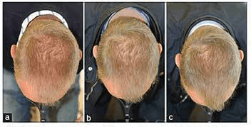 HairMax Laser treatment progression