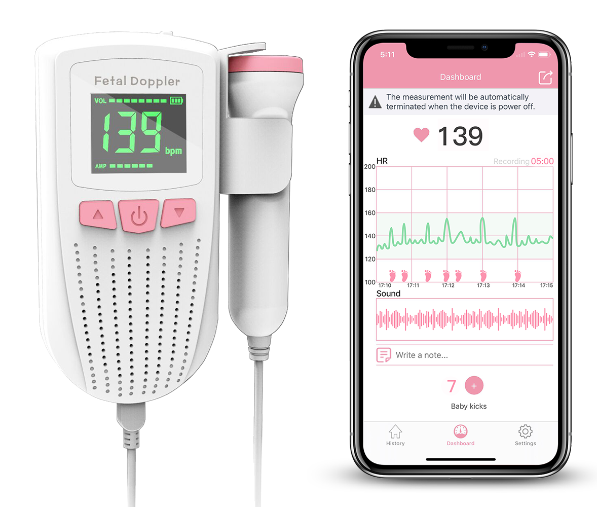Wellue DuoEK Hand-held EKG Monitor Wearable ECG Monitor
