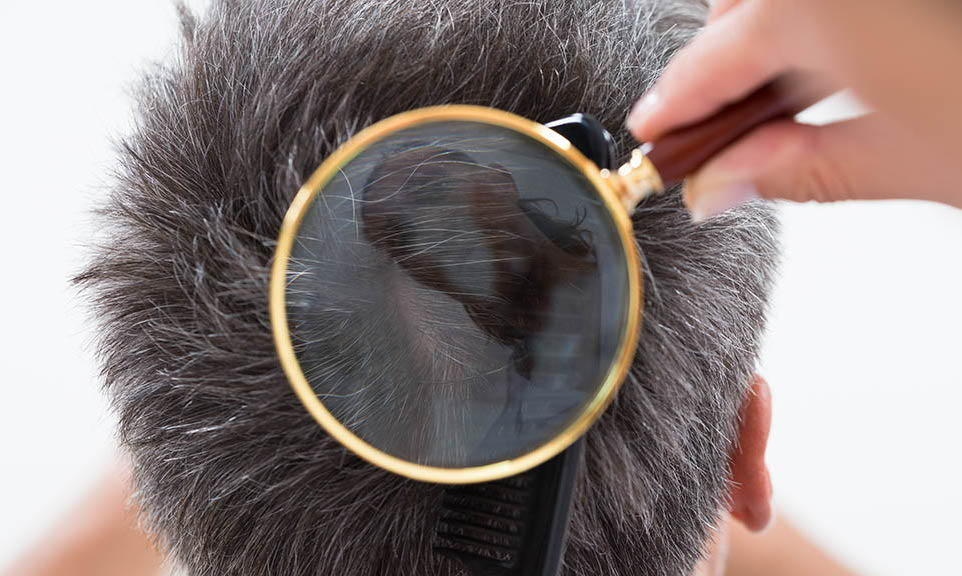 magnifying glass over hair