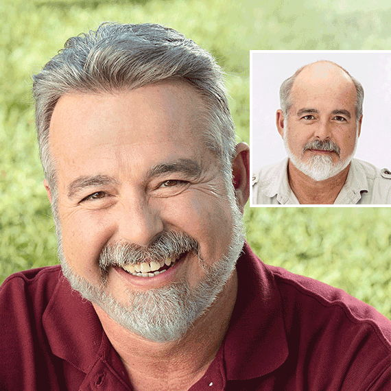 Before and after image of older man with hair loss
