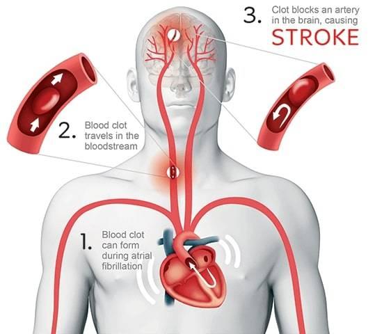 جلطات الدم التي يسببها الرجفان الأذيني