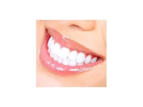 Clean White Teeth!