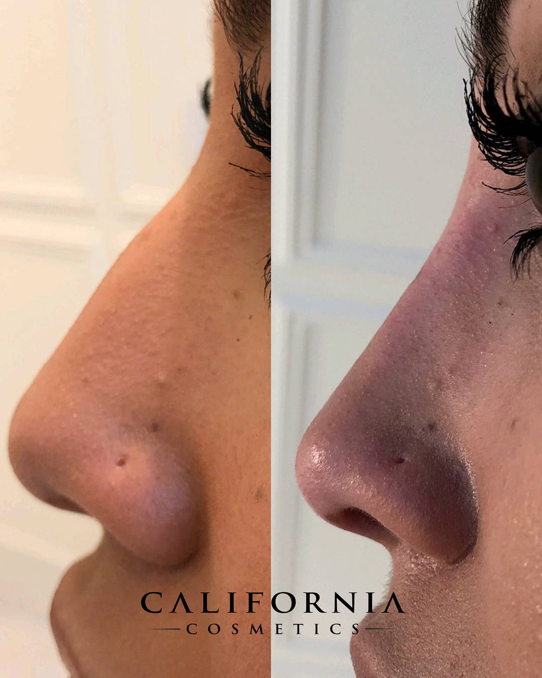 Woman's nose before and after nonsurgical nose job