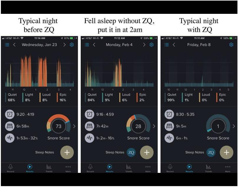 App to track snoring