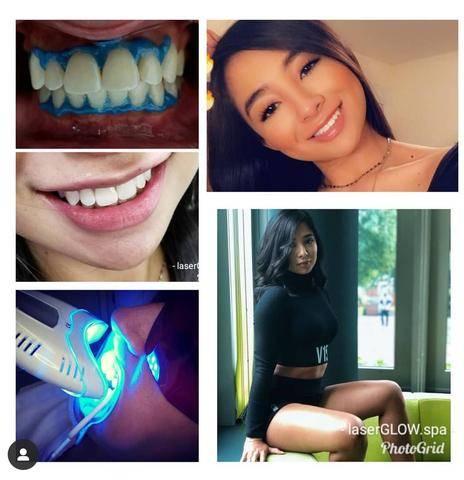 LaserGlow Spa Best LED Teeth Whitening Kit Nicole Rivera