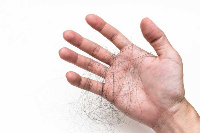 hair lost in a hand