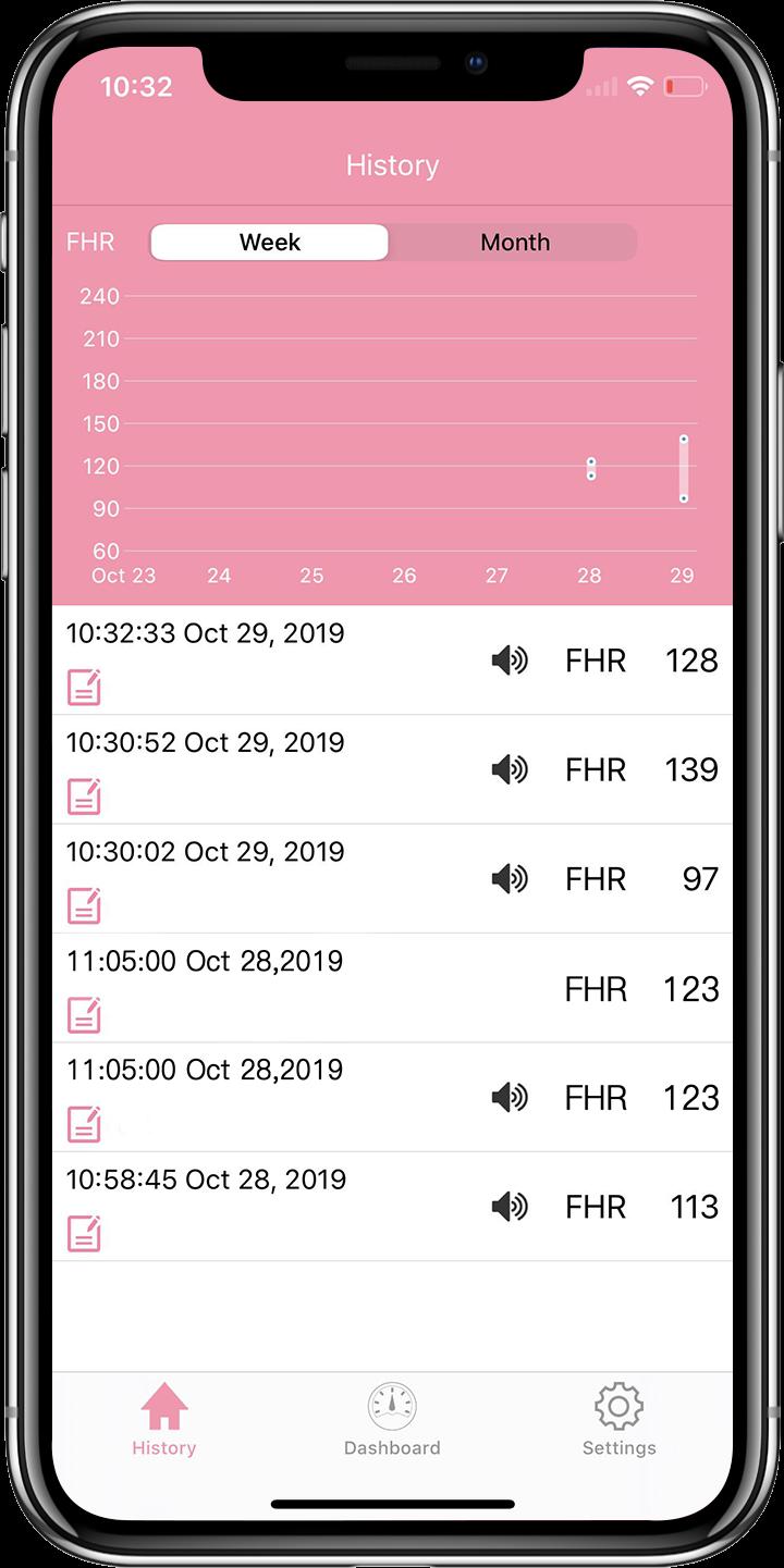 Die Wellue Babytone App verfolgt Ihre historischen Aufzeichnungen