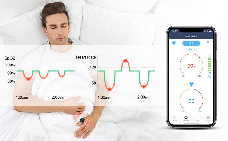 O2Ring مراقبة الأوكسجين المستمر طوال الليل توقف التنفس أثناء النوم
