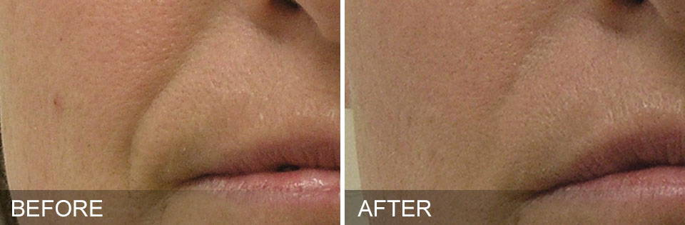 HydraFacial Results - Nasolabial Folds After 4 Sessions - Thai-Me Spa in Hot Springs, AR