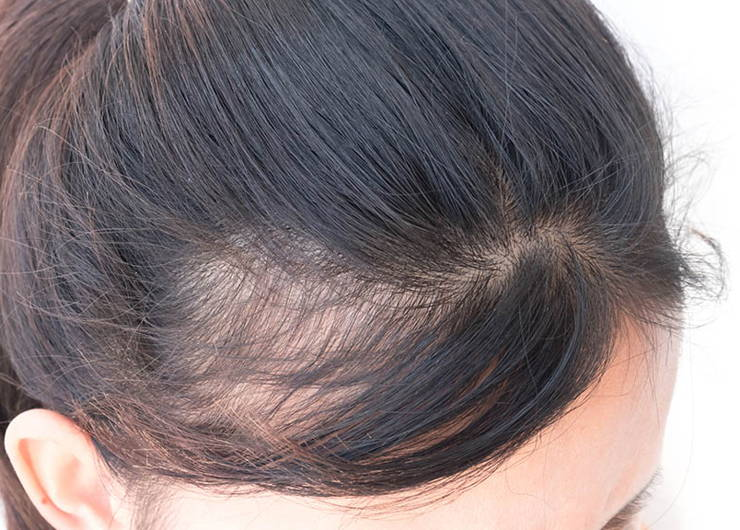 person with hair loss