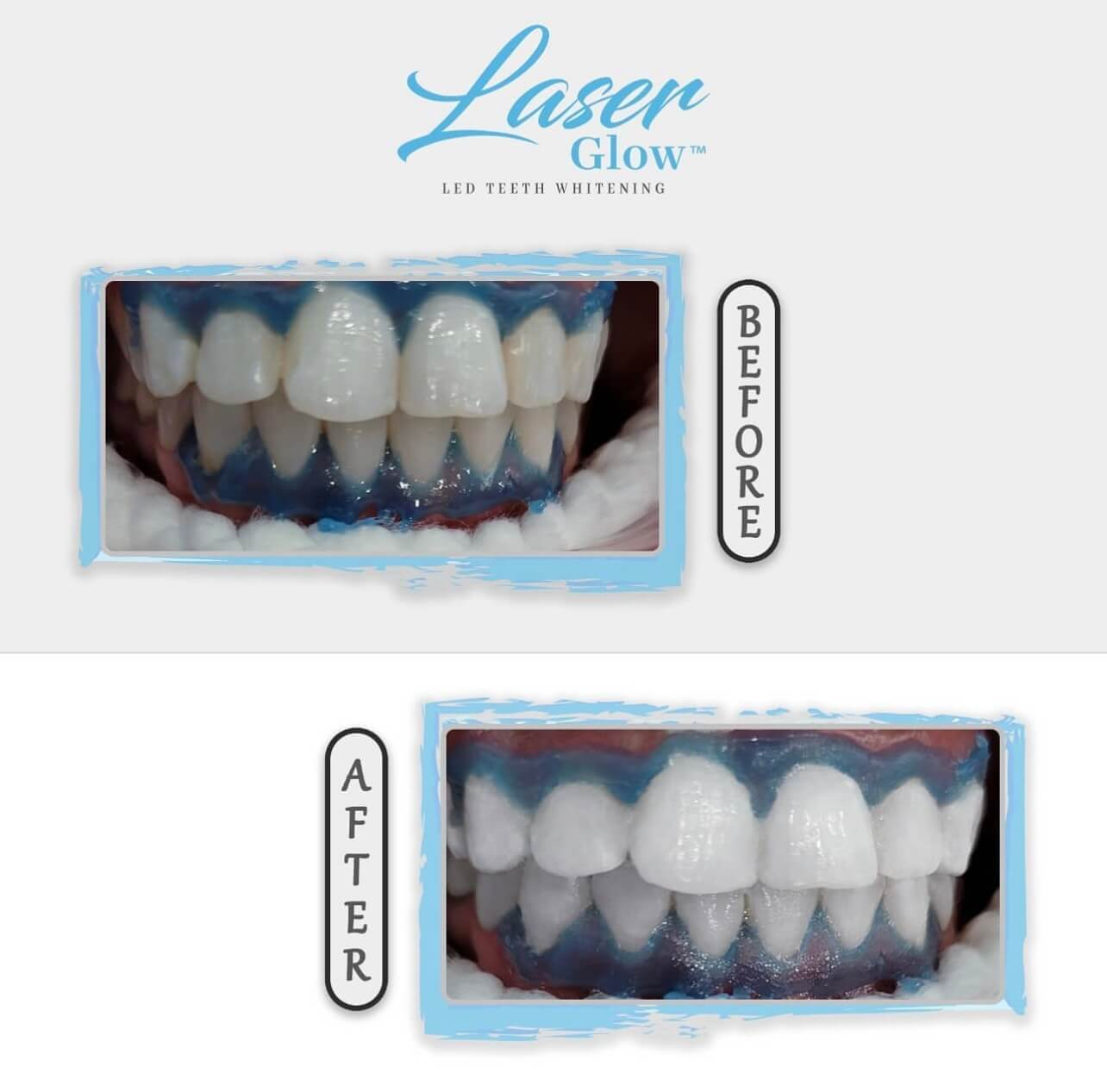 laser glow led teeth whitening kit results