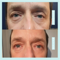 eyes-results