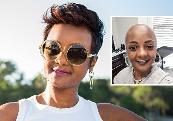 Female pattern baldness before and after hair restoration