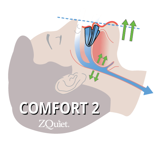 head graphic depicting jaw movement for comfort size 2