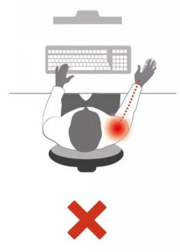 ergonomic carpal tunnel syndrome pain