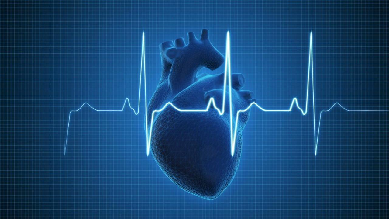 Arrhythmia, heart arrhythmia, cardiac arrhythmia, what is Arrhythmia