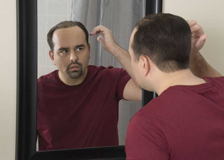 man looking at hairline in the mirror