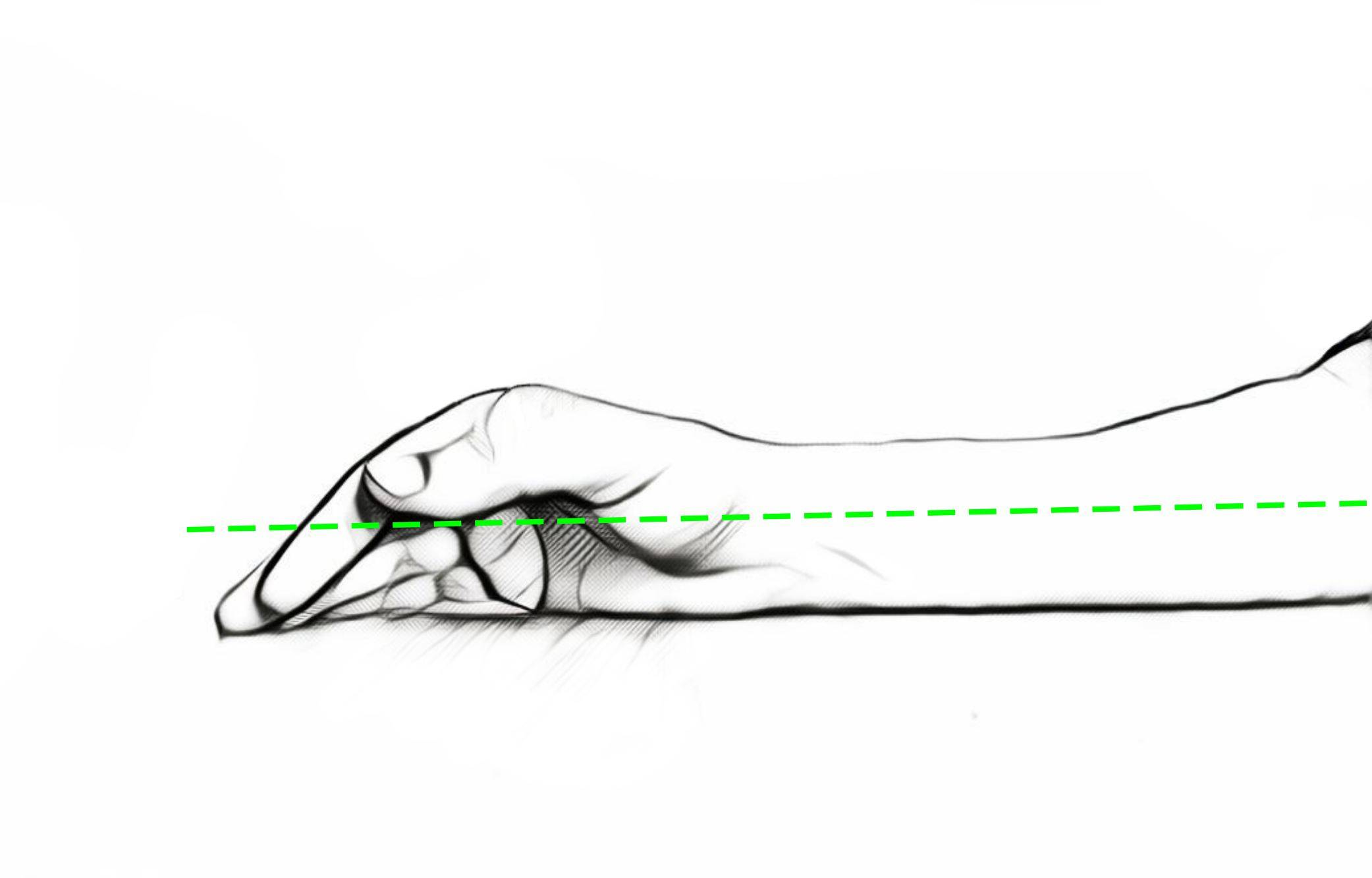 forearm natural resting position
