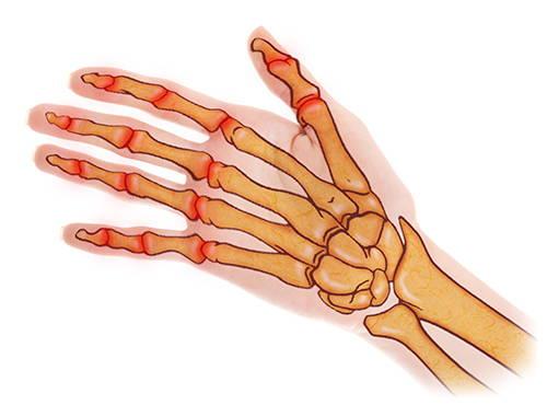 OSTEOARTHRITIS ILLUSTRATION