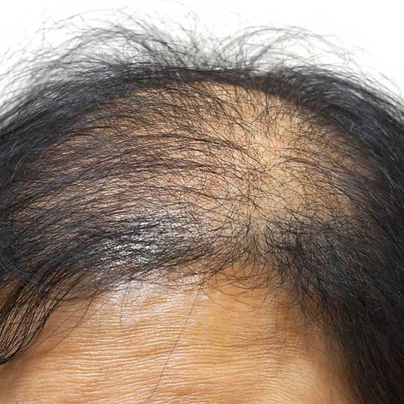 Advanced hair loss on a woman's scalp
