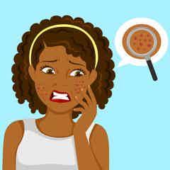 Do Probiotics Help With Acne? - auto
