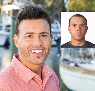 foto de antes y después de un hombre con reemplazo de pérdida de cabello