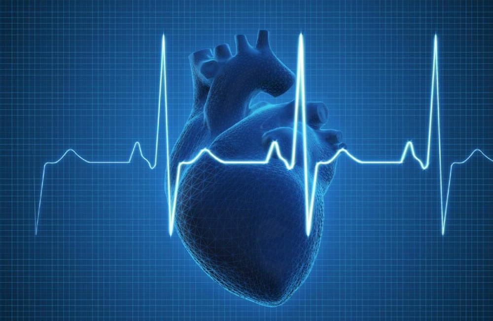 부정맥, 부정맥이란 무엇입니까, 부비동 부정맥