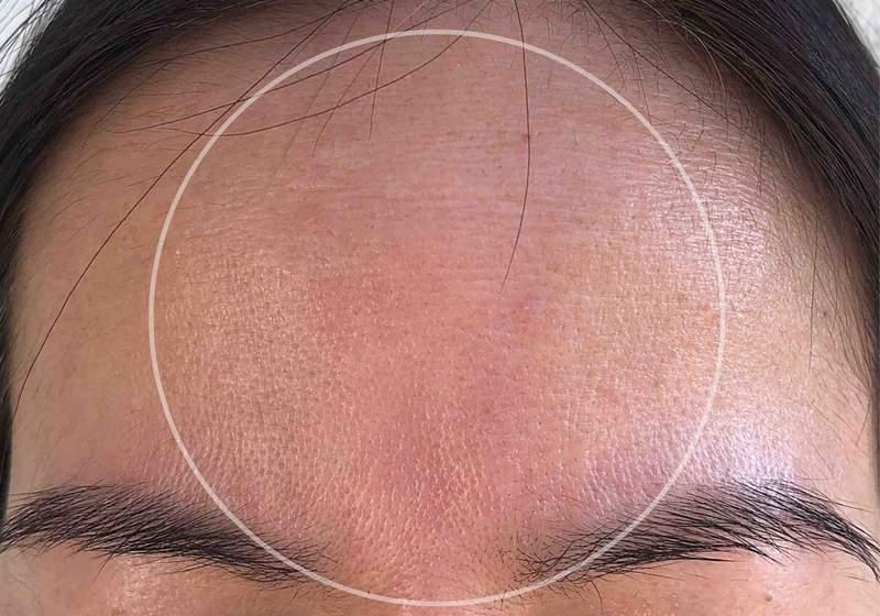 wrinkles-reduce-get-rid-fine-lines-collagen