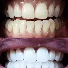 teeth whitening, teeth whitening kit, best teeth whitening, to whiten teeth