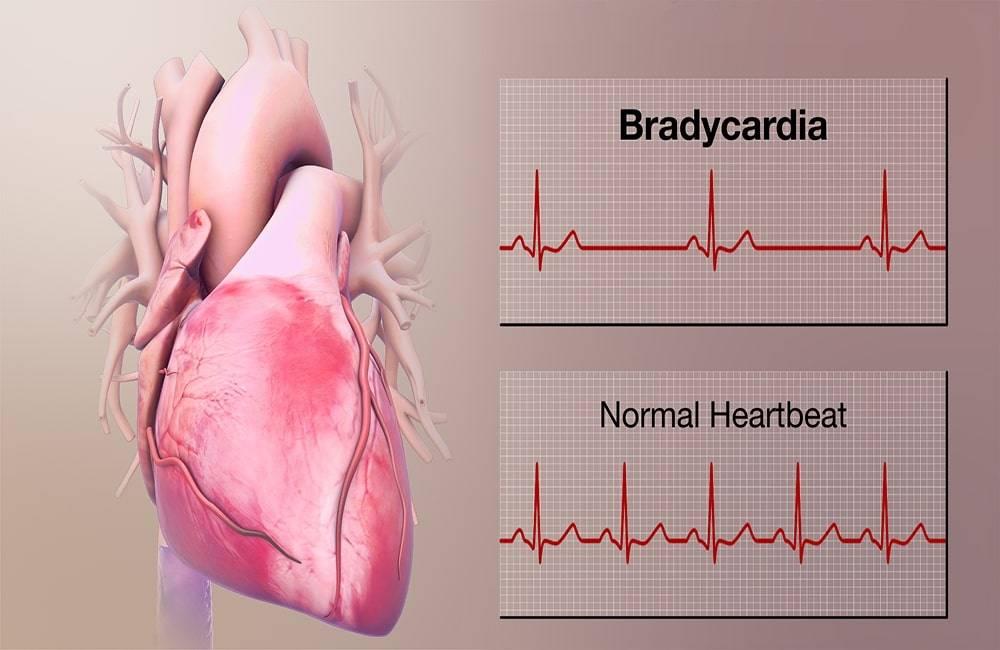 بطء القلب ، انخفاض معدل ضربات القلب