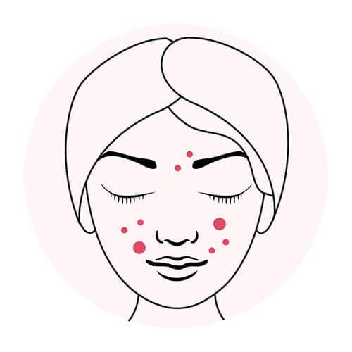 Acne skin guide