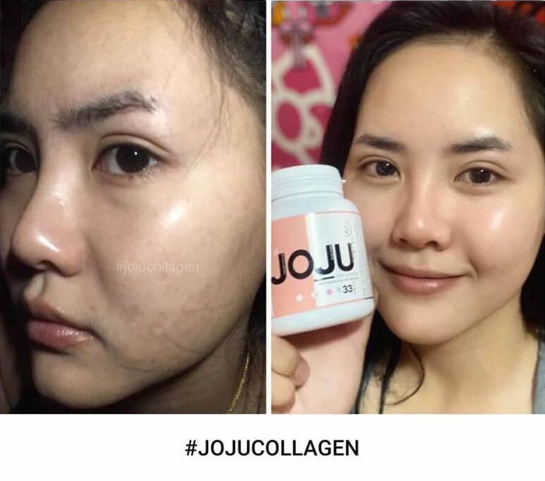 JOJU Thailand Best Premium Collagen Review- Shoppersy.com