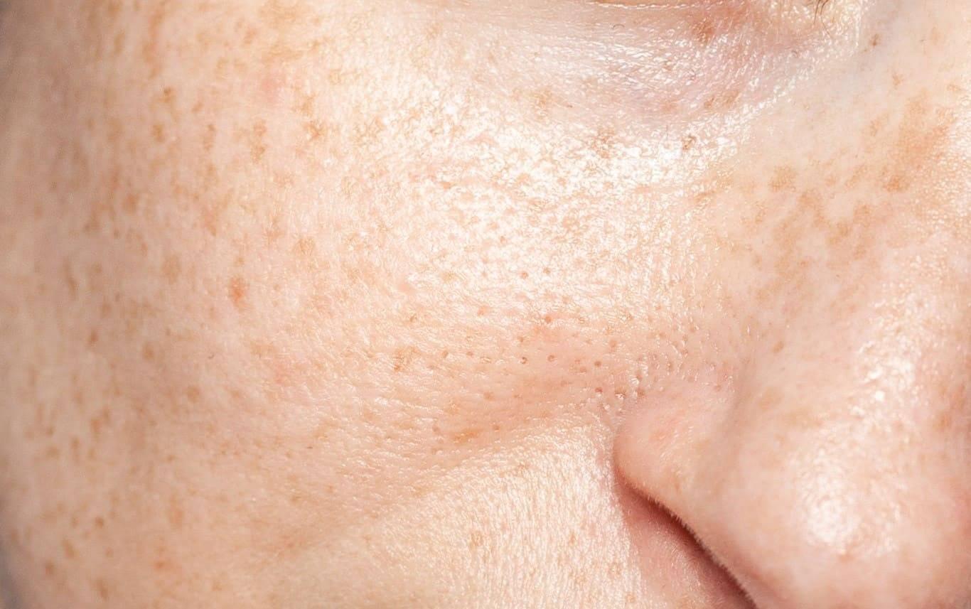 Aktiv Harzsalbe bei großen Poren