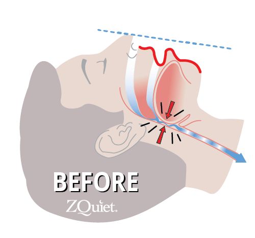 head profile graphic depicting the cause of snoring