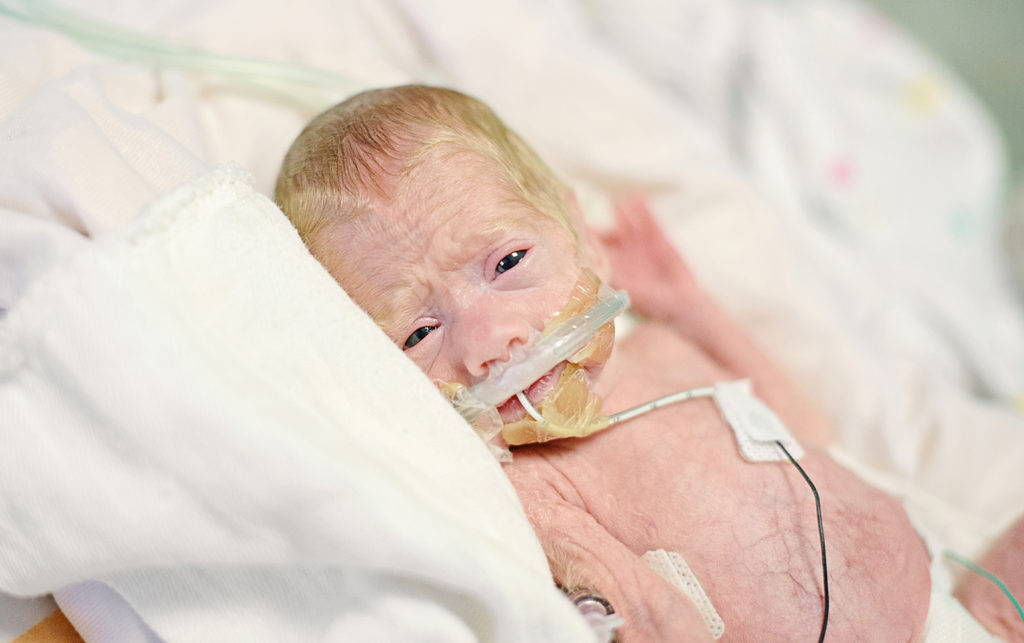 closeup preemie baby with oxygen OG tube in incubator, nicu photography