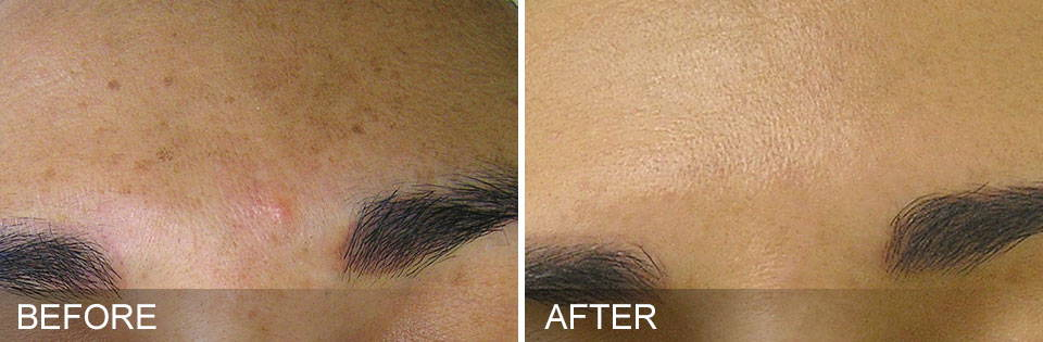 HydraFacial Results - Brown Spots After 5 Sessions - Thai-Me Spa in Hot Springs AR
