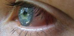 Dry Eye/MGD Treatment