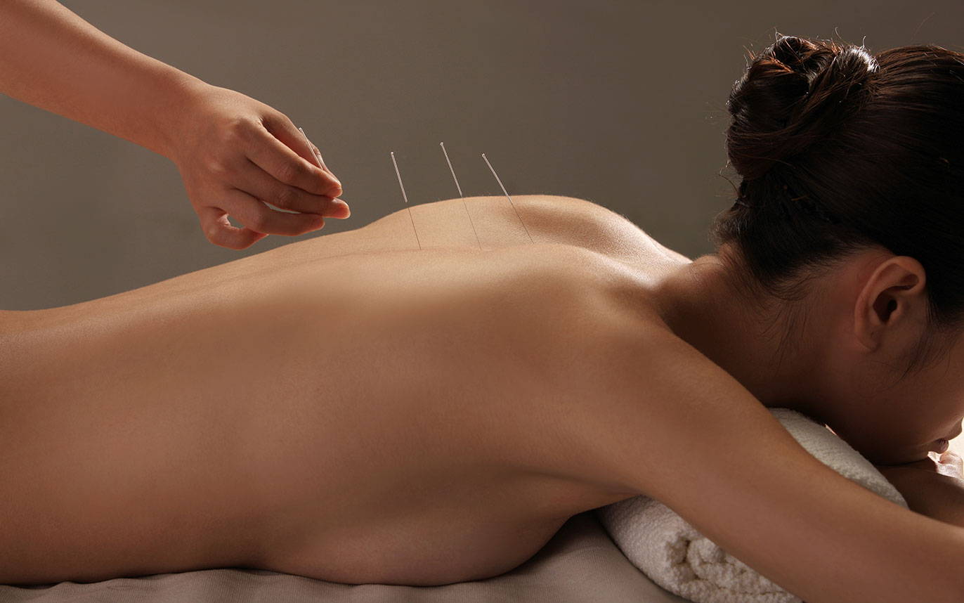Menopause An Acupuncture