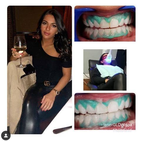 LaserGlow Spa Best LED Teeth Whitening Kit Burcu OnTheGLow Tanning