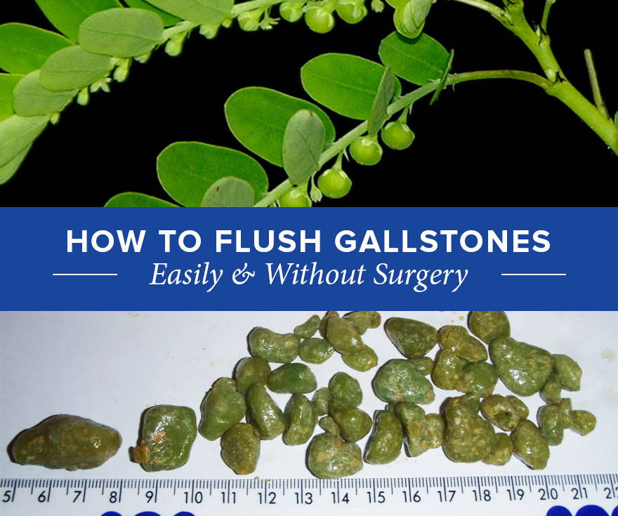 Gallstones Cure Flush Gallstones Naturally