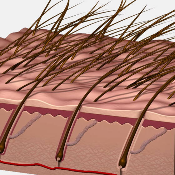 Close up of hair and hair folicles