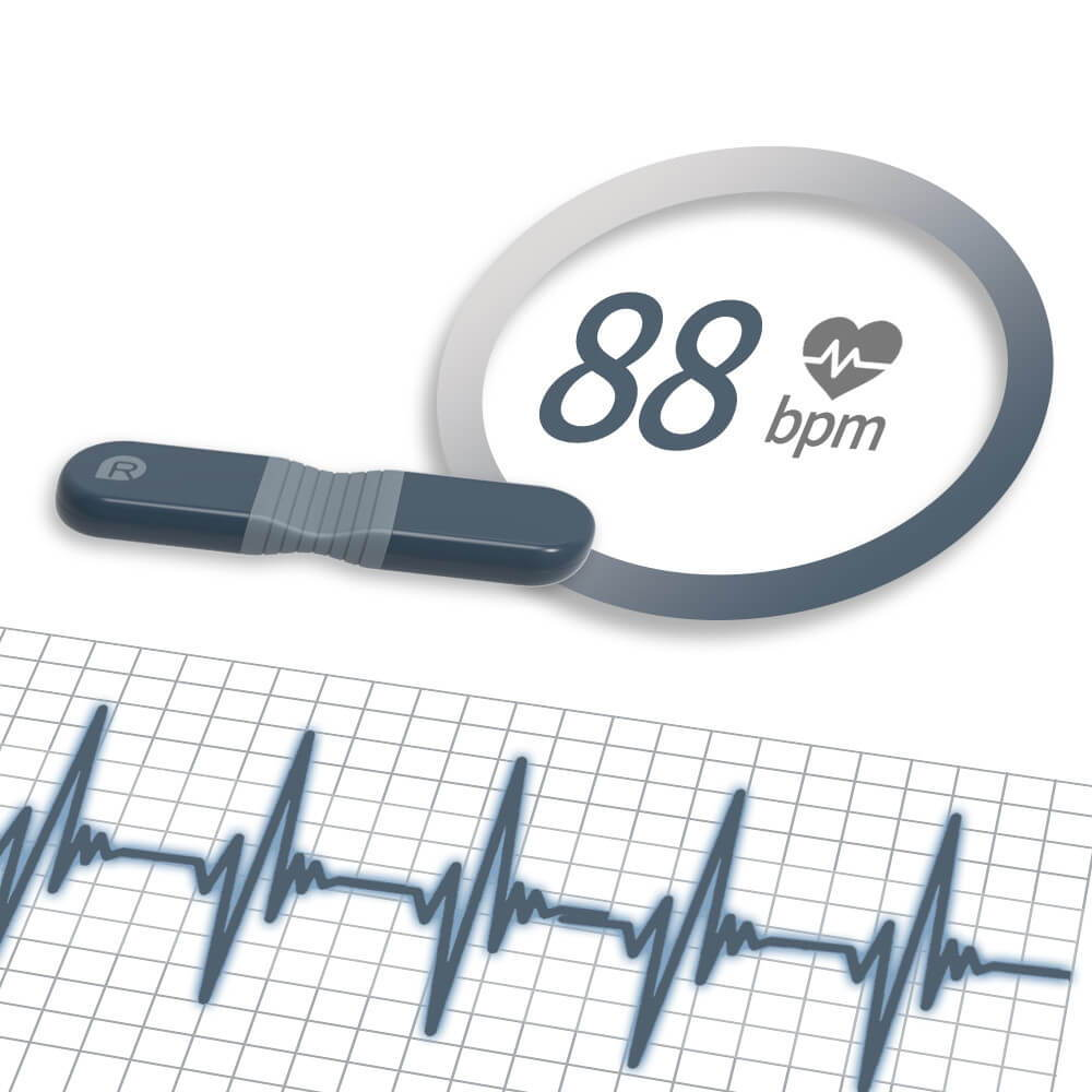 24시간 홀터 모니터링을 위한 ECG 모니터