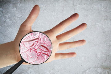 Do Probiotics Help With Acne? -