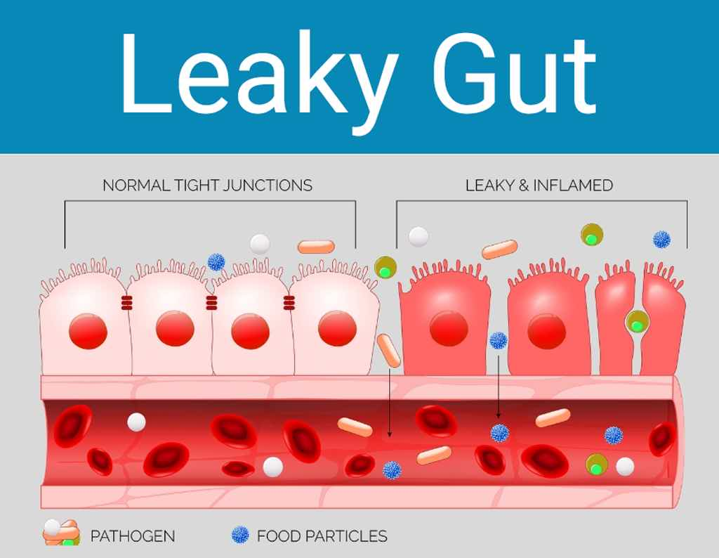 What is Leaky Gut - auto