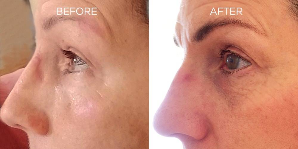 Nulastin Results Increase Brow Thickness by 120%