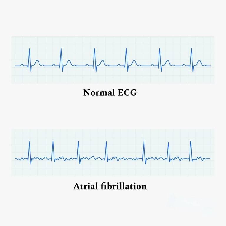 تخطيط القلب الطبيعي مقابل AFib ECG