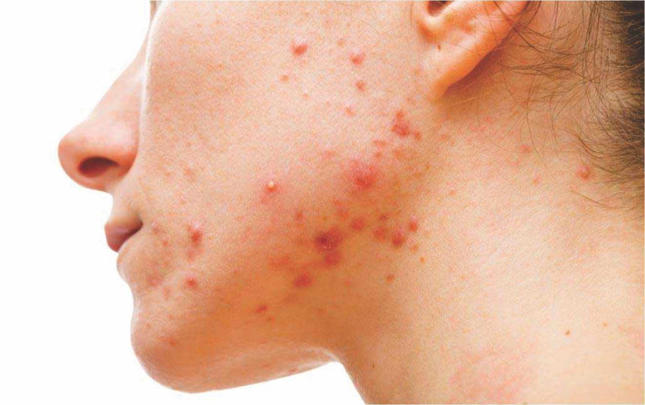 myolift microcurrent treatment for acne treatment
